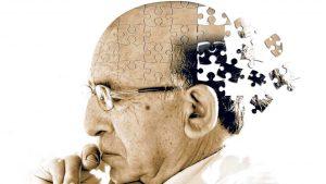 otępienia - choroba Alzheimera