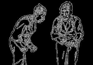 otępienia-inne sklasyfikowane gdzie indziej Parkinson